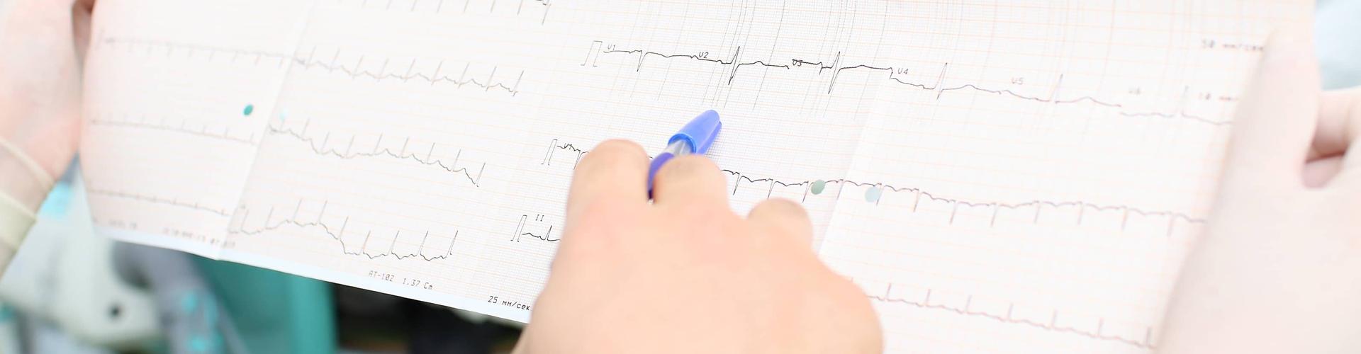 interpretive cardiogram of patient in hospital